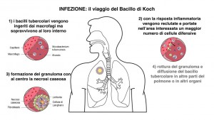 bacillo tbc